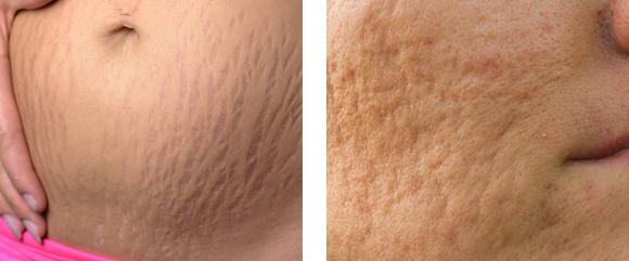 Narbenarten - Schwangerschaftsstreifen und Aknenarben sind typische atrophe Narben