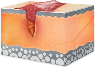 Narbenbildung Teil 2 - Narbengewebe