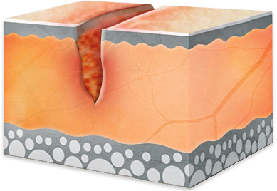 Narbenbildung Teil 1 - verletzte Haut